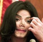 mj+plastic+surgery