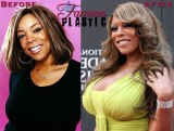 wendy-williams-plastic-surgery